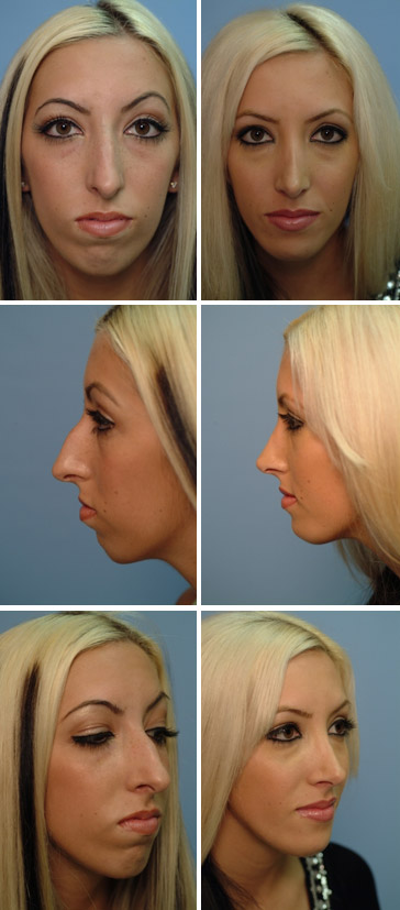 Chin Augmentation Before and After 1