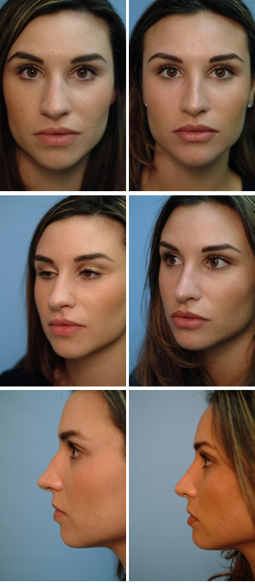 Chin Augmentation Before and After 2