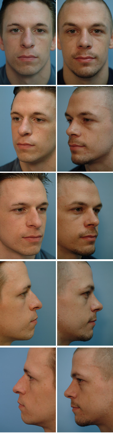 Chin Augmentation Before and After 3