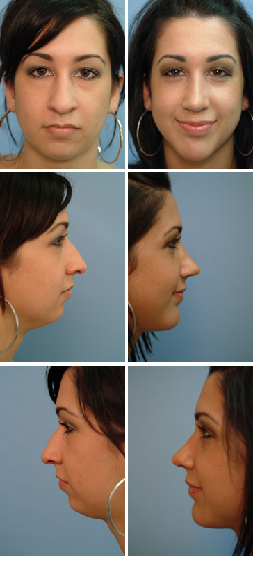 Chin Augmentation Before and After 4
