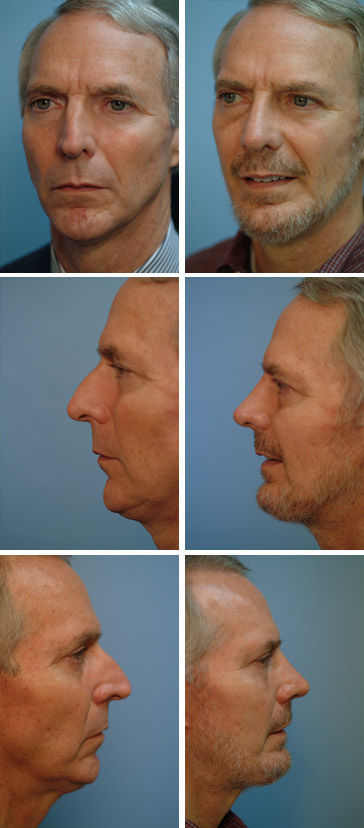 Chin Augmentation Before and After 5