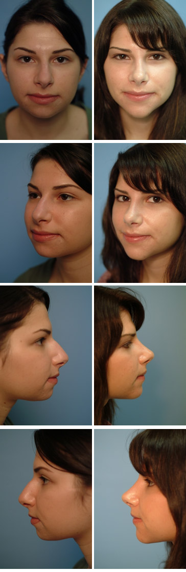 Chin Augmentation Before and After 6