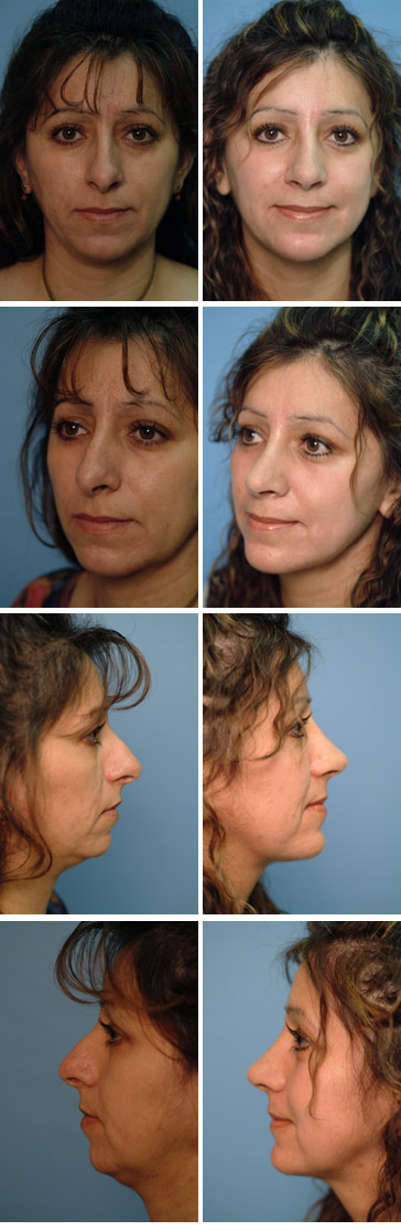 Chin Augmentation Before and After 7