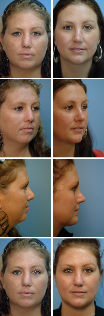 Chin Augmentation Before and After 8