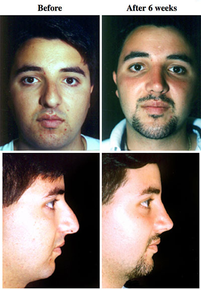 Ethnic Nose Before and After