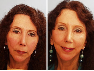 Before and after - laser peel 3