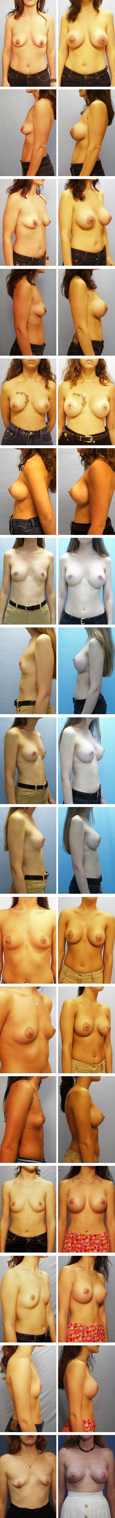 Breast Augmentation Periareolar Incision Before and After Sets