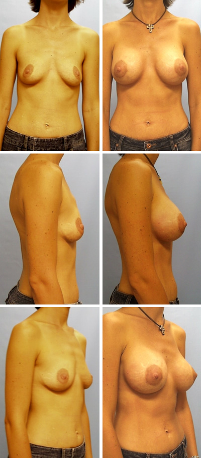Breast Augmentation Periareolar Incision Before and After 2