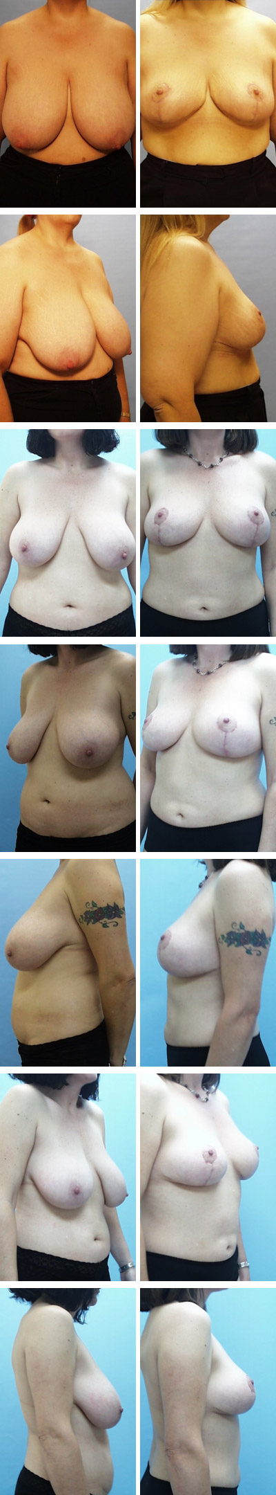 Breast Reduction Before and After Sets