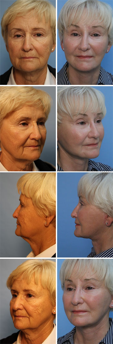 Before and after - patient photos 2