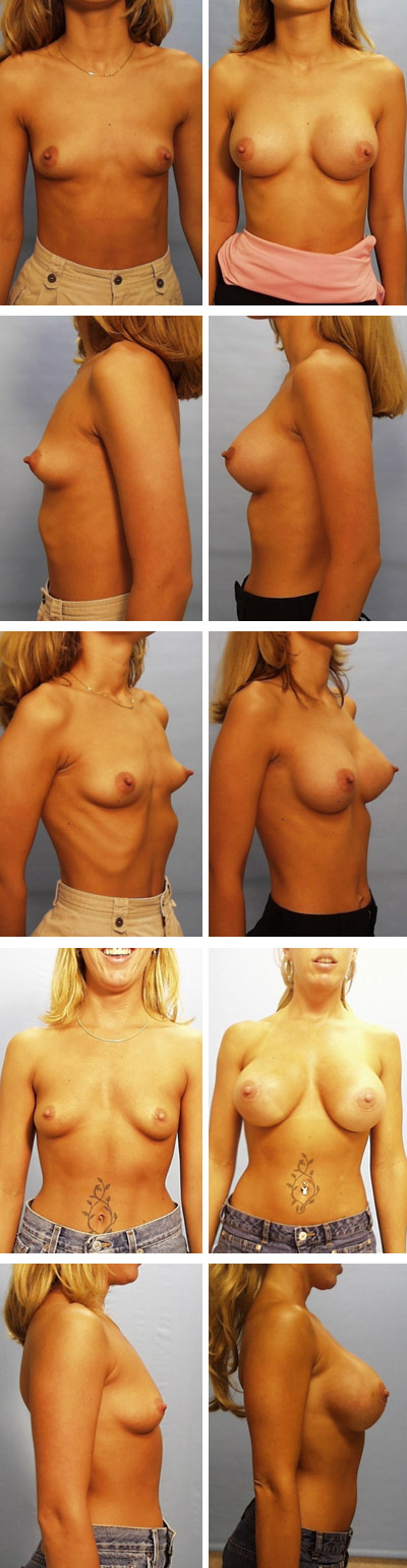 Breast Augmentation Periareolar Incision Before and After 4