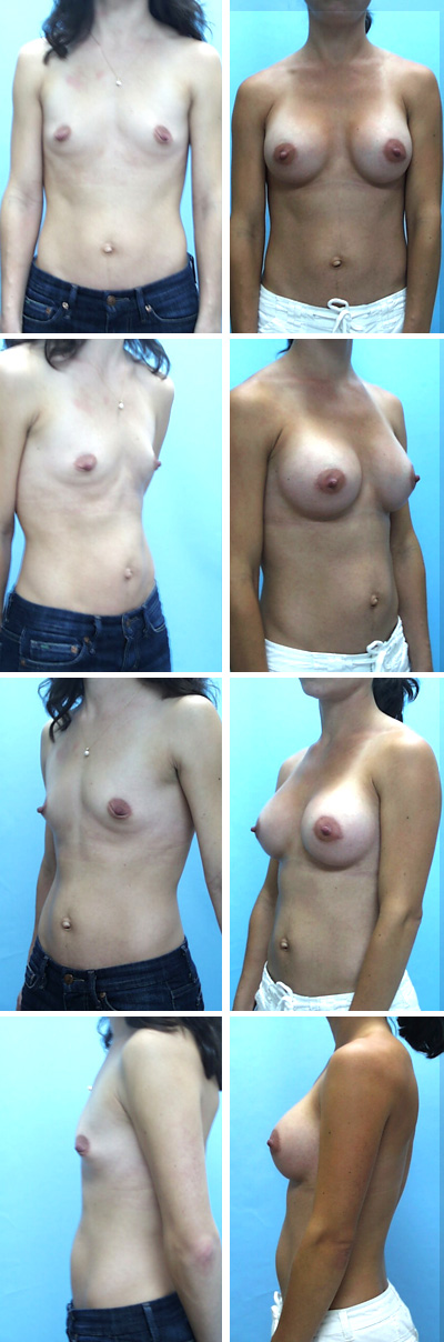 Breast Augmentation Periareolar Incision Before and After 5