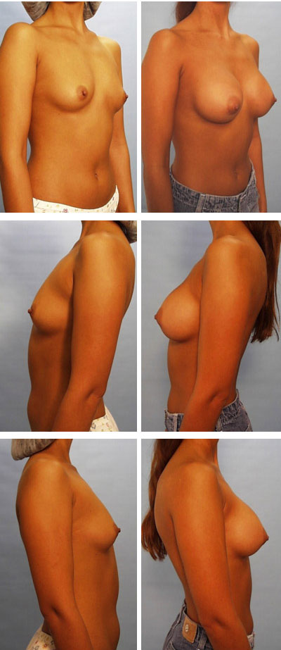 breast augmentation before and after 8