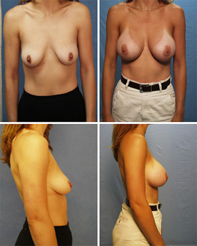 Breast Augmentation Periareolar Incision Before and After 1