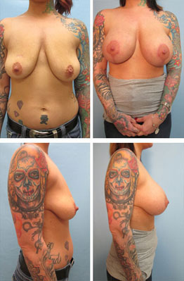 Breast Lift Augmentation 1