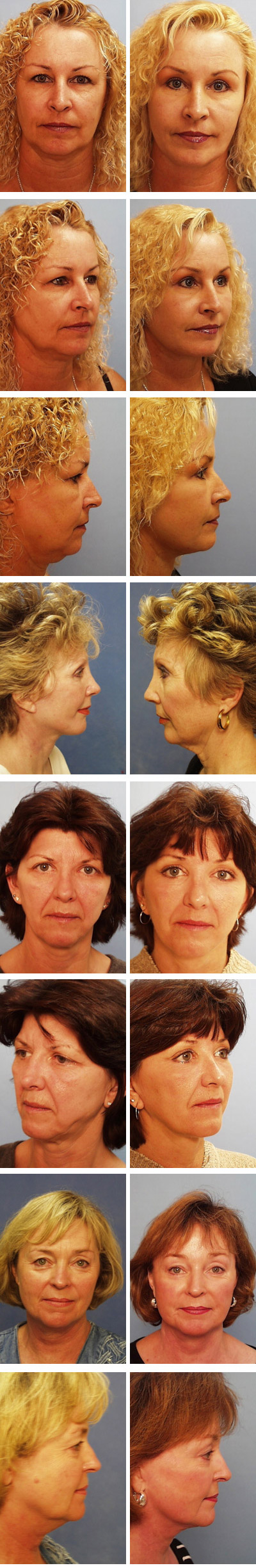 Before and after - patient photos 3