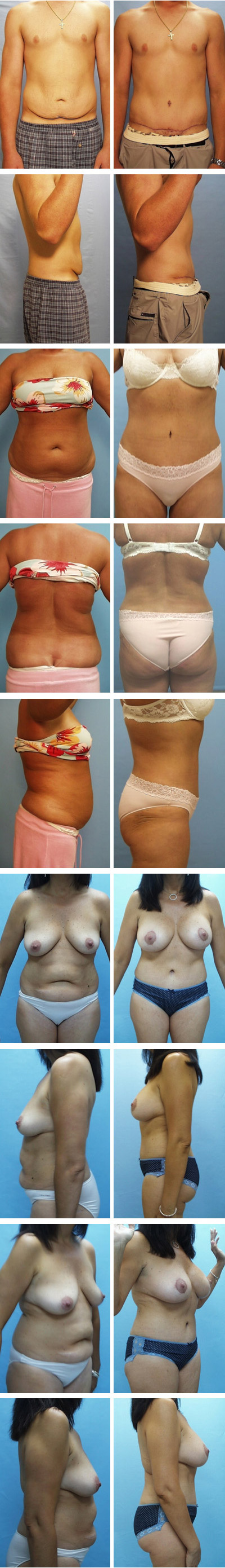 Tummy Tuck Before and After Sets 1