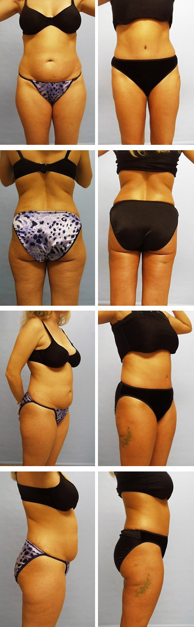 Tummy Tuck Before and After Sets 2
